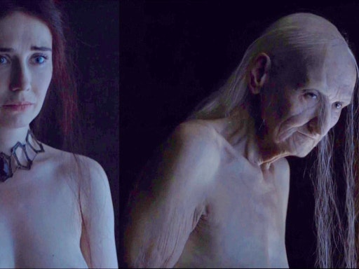 Melisandre's before and after photos say it all!
